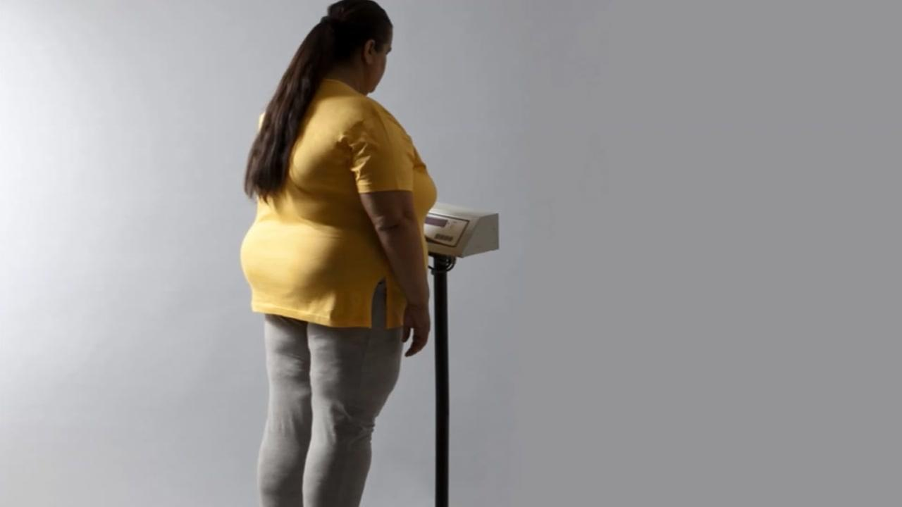 Study on obesity, depression, higher education