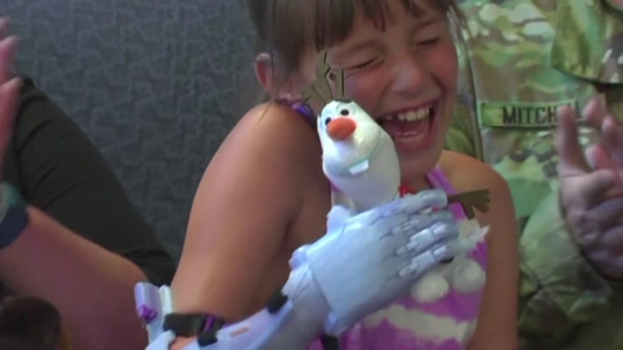 Frozen-themed arm given to girl