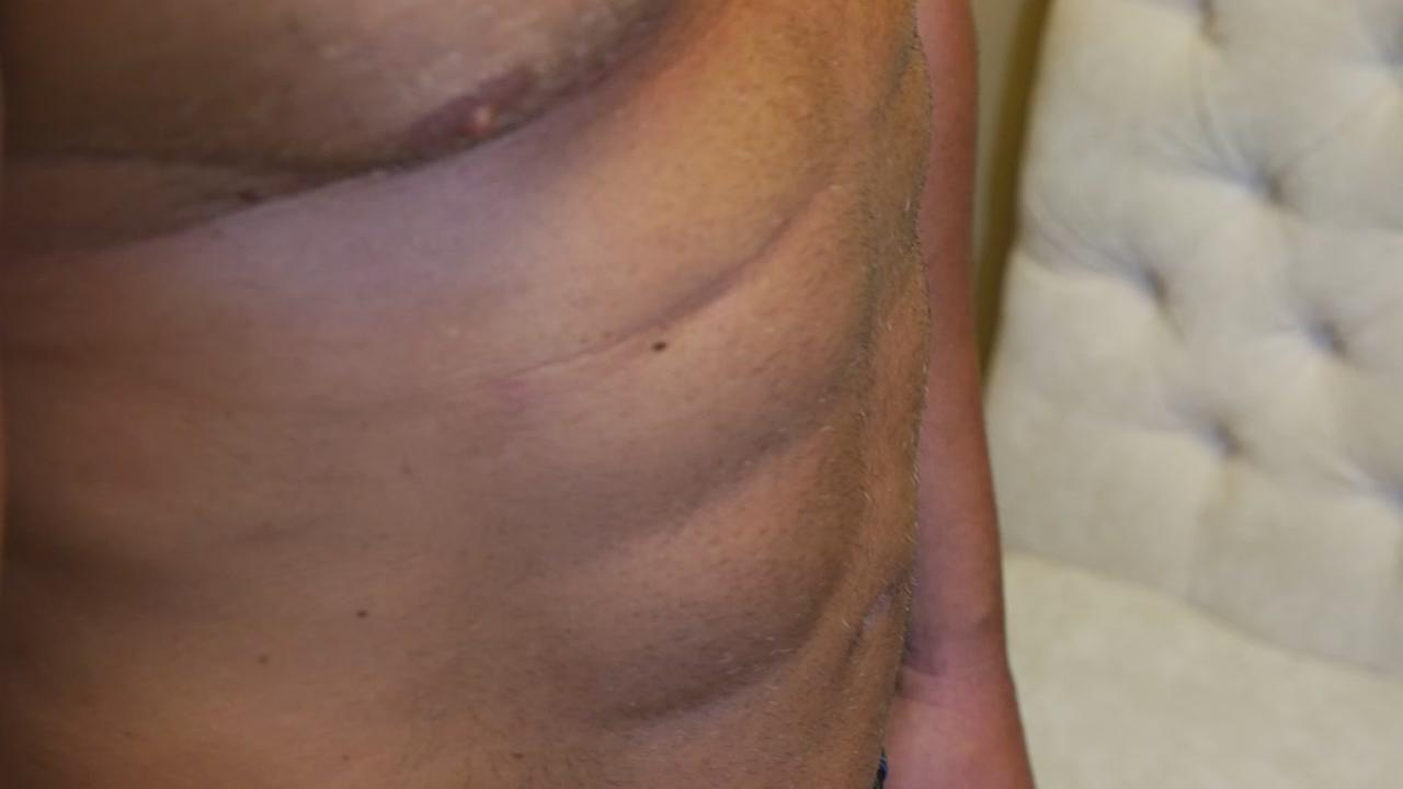 Local plastic surgeon is giving his patients a six-pack in less than a day