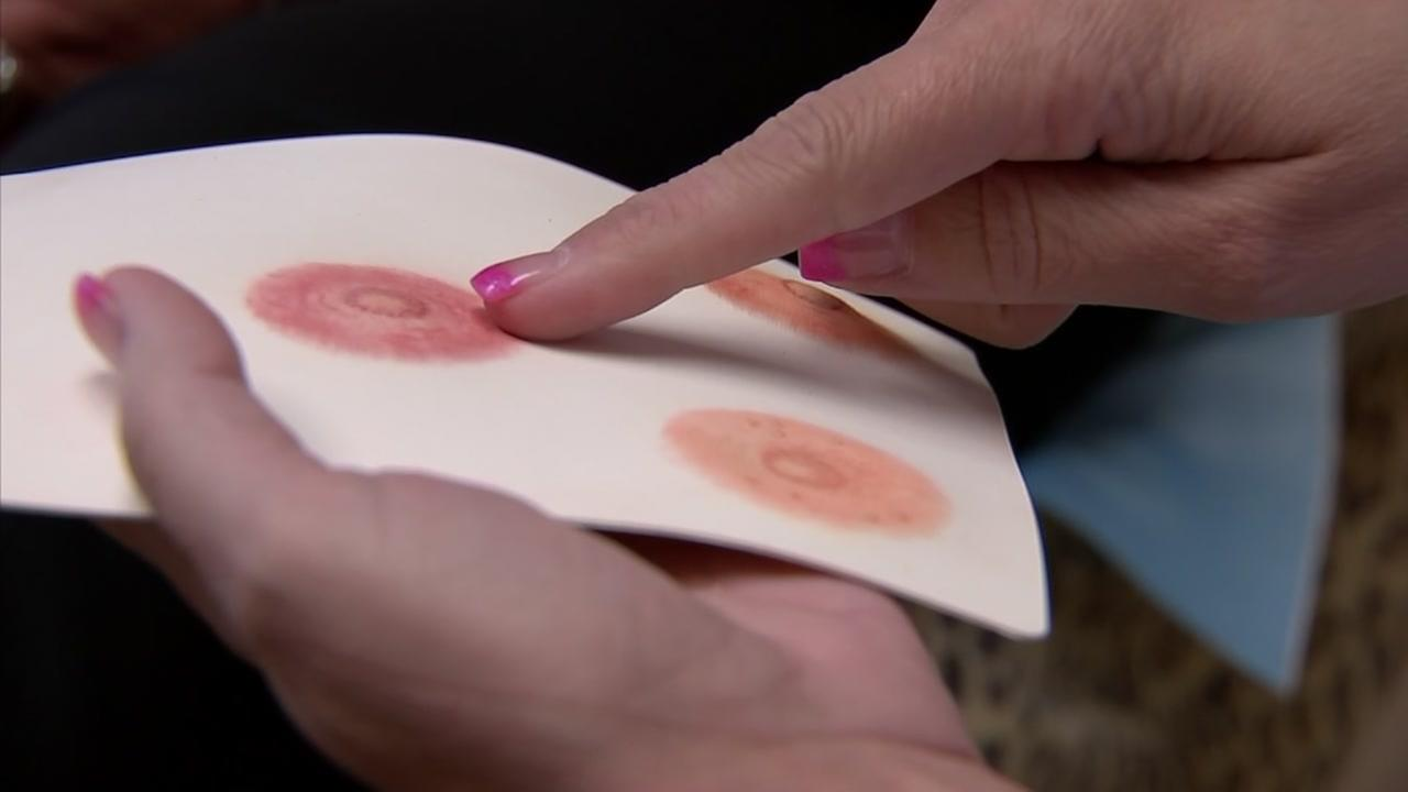 Special tattoo makes breast cancer survivors feel like women again