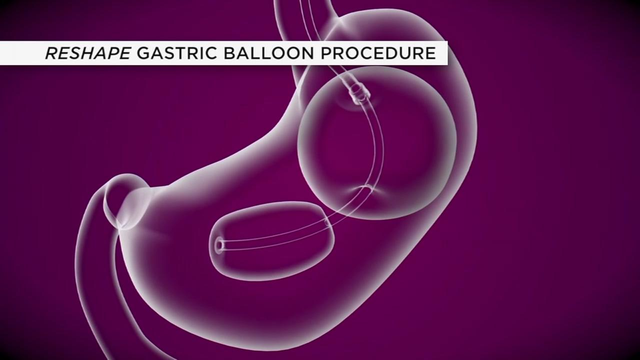 Gastric balloon procedure add new option for weightloss