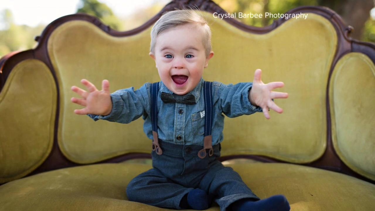 Mom Fights For Son With Down Syndrome To Be Included In Ad Campaign