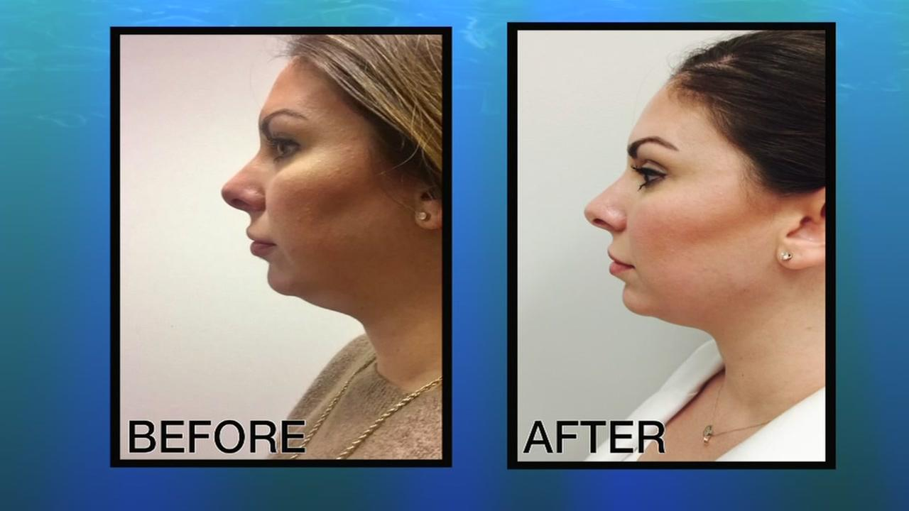 How to never have a double chin again