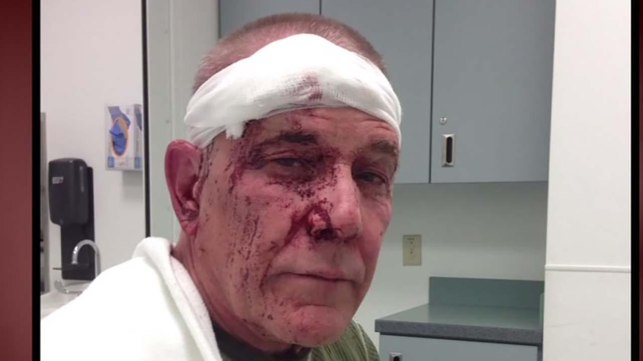 Local artist attacked and beaten over Uber ride