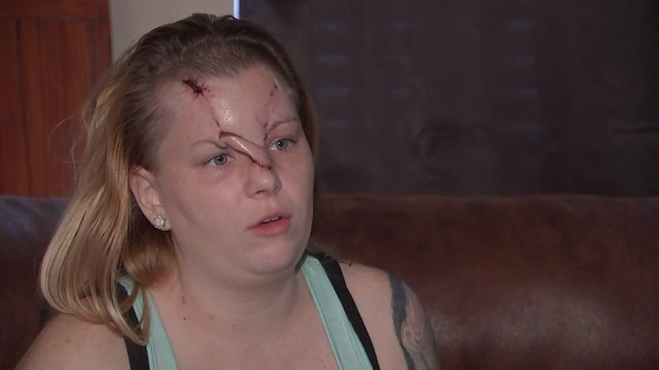 Woman stops suicidial father but is shot in the face