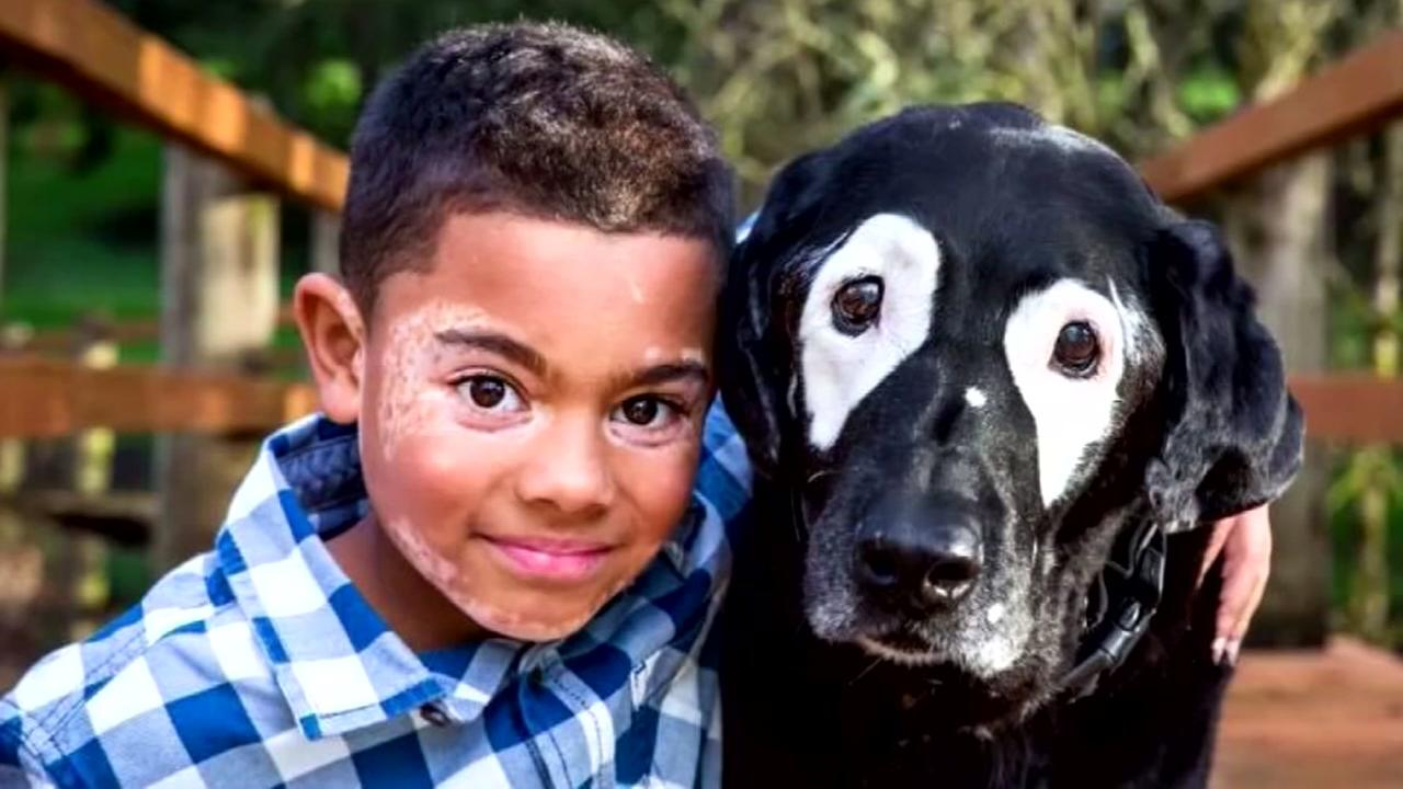 Boy meets dog with same skin condition
