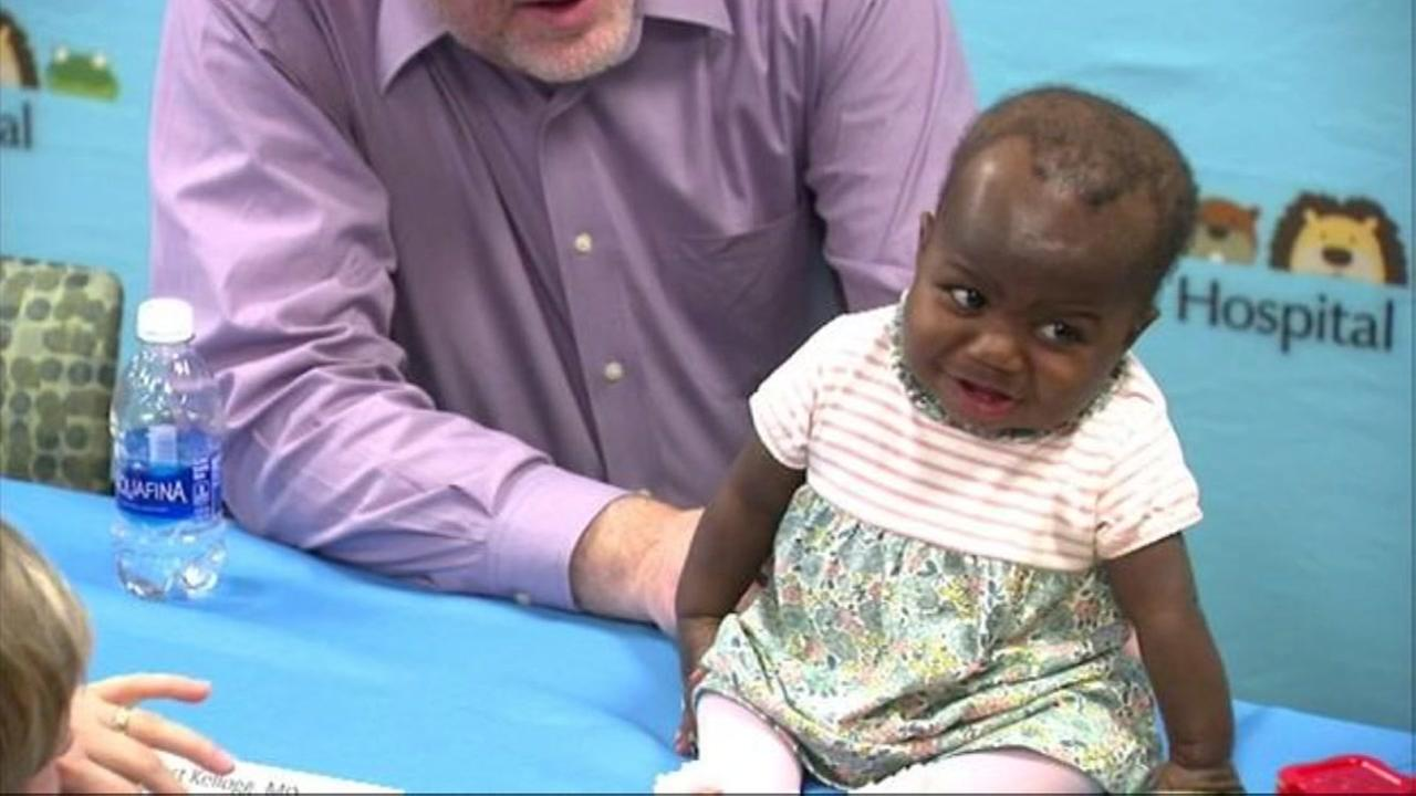 Baby born with 4 legs, 2 spines goes home to Ivory Coast
