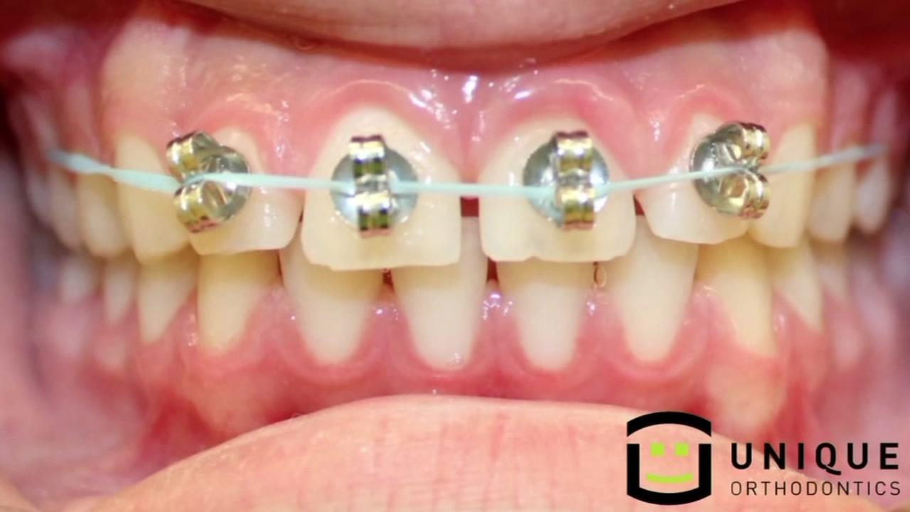 Diy Teeth Braces Do It Your Self DIY
