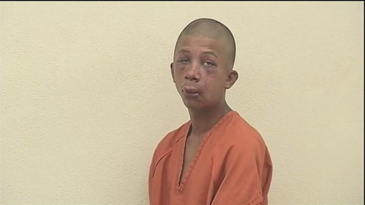 Police: Dad beat sons attacker
