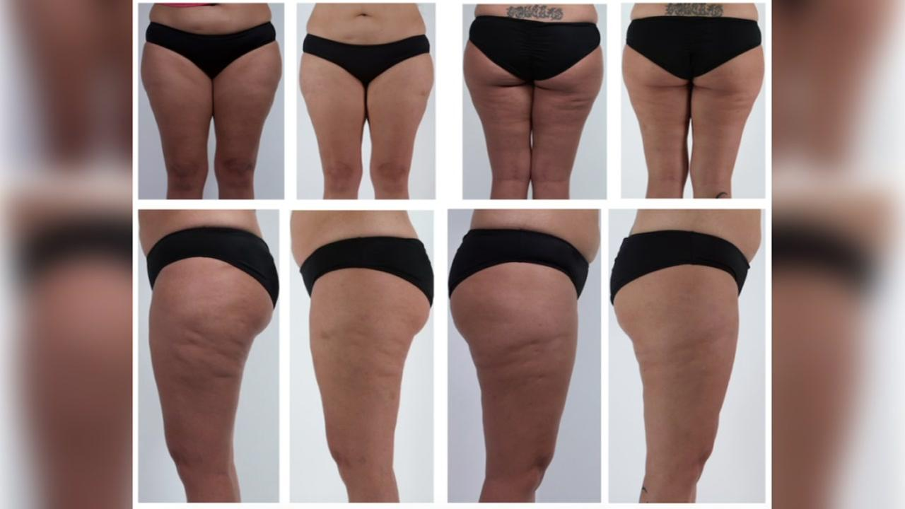 Can a plastic tool get rid of cellulite?