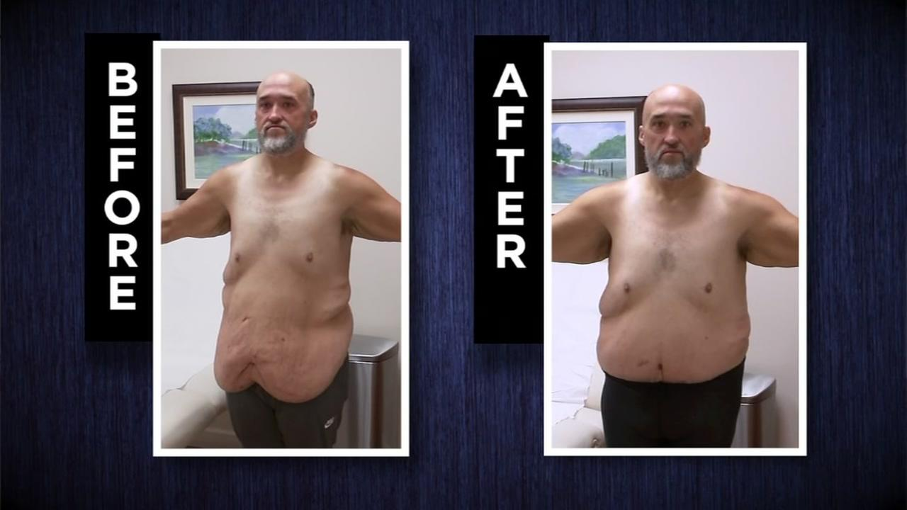 Man with skin removal surgery