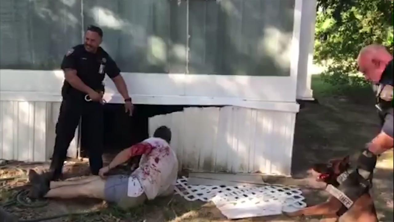 K9 attacks innocent repairman