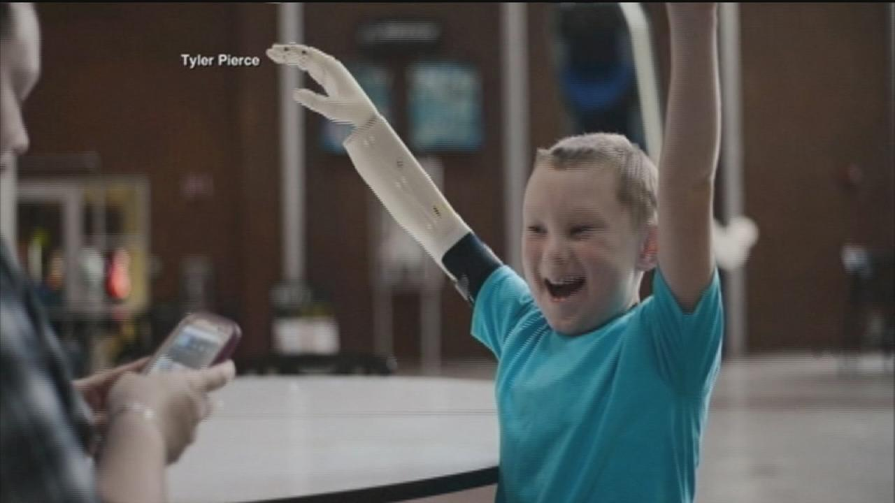 Boy receives life-changing prosthetic