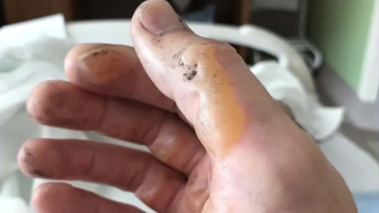 Man burned by exploding e-cigarette battery in pocket