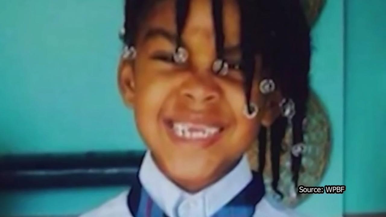 Girl dies months after drinking boiling water on dare