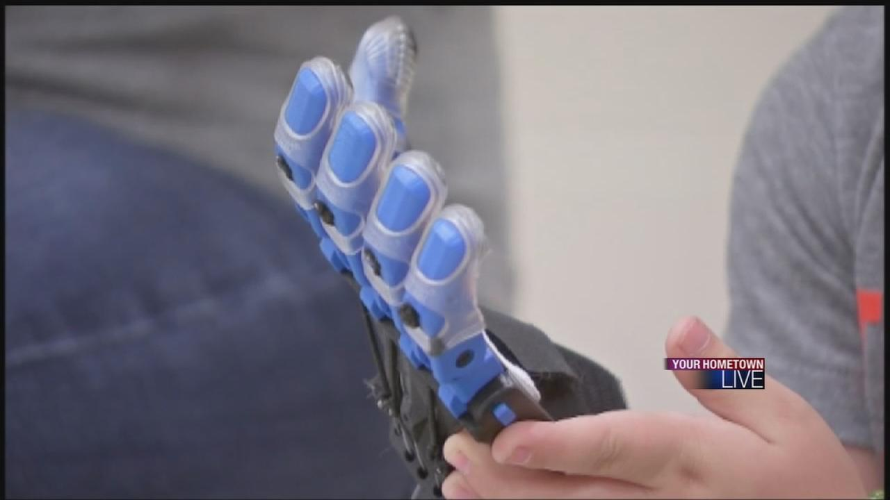 3D printer gives boy helping hand