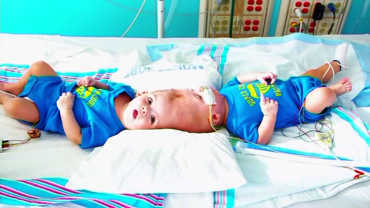 New York surgeons separate twins conjoined at head, one remains in surgery