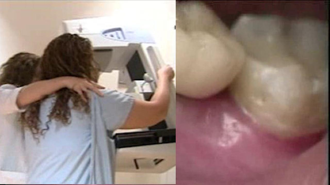Study: possible link between gum disease and breast cancer