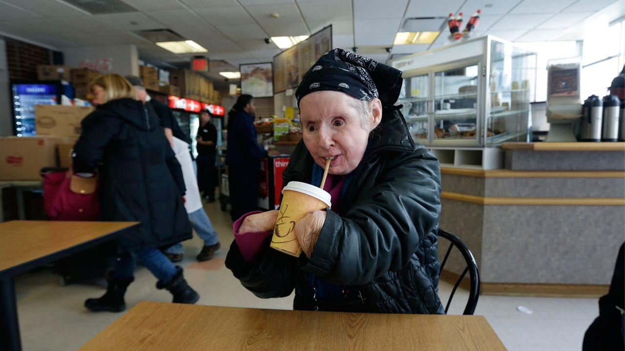 In this Tuesday March 3, 2015 photograph, Charla Nash drinks a cup of hot coffee through a straw while visiting a cafe in Boston. Nash, who is blind, lost her face, eyes and hands.