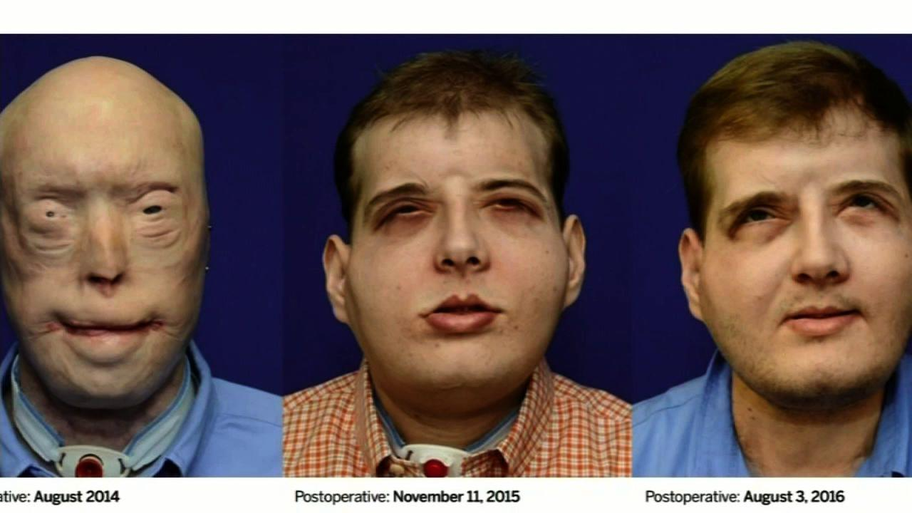 This series of photos shows the progression of the transplant after dozens of surgeries.