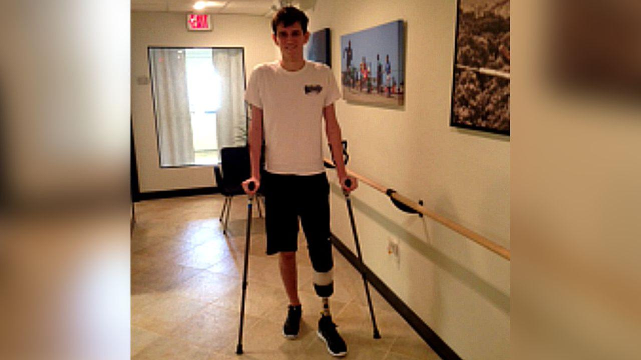 Teen with amputated foot gives thanks, takes first steps after Central Park explosion