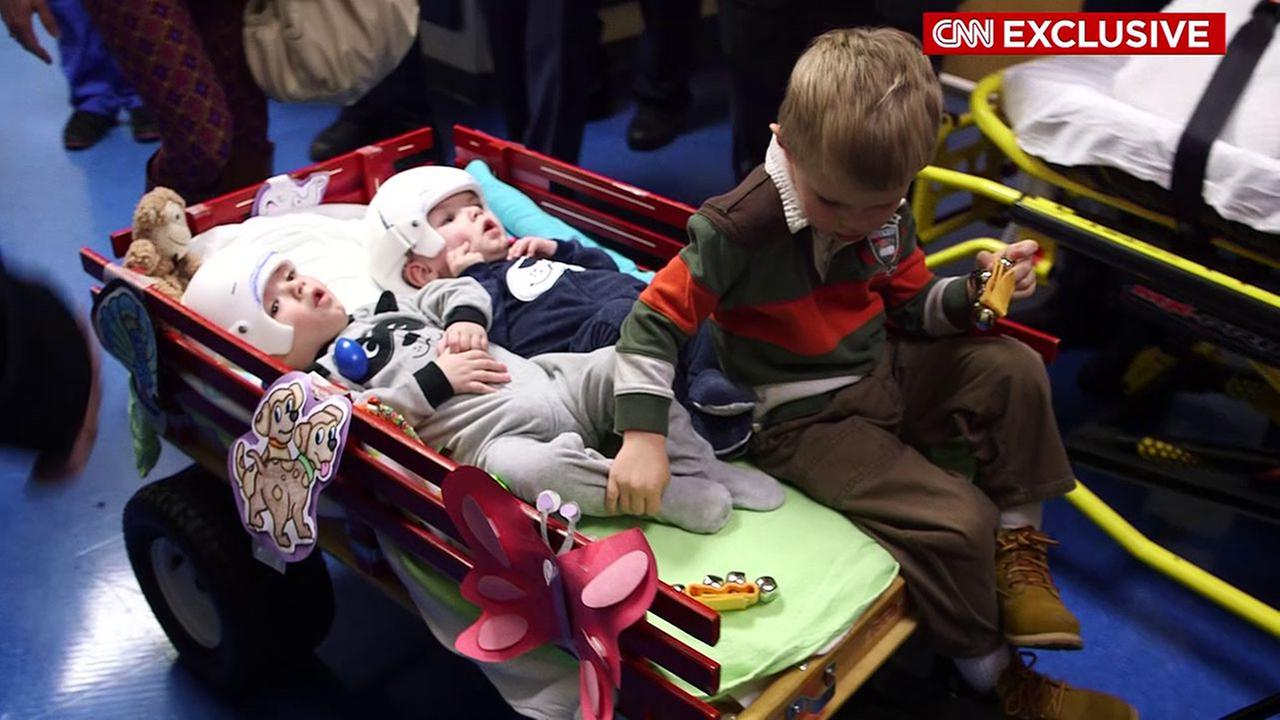 Successfully separated conjoined twins Jadon and Anias McDonald leave NYC hospital