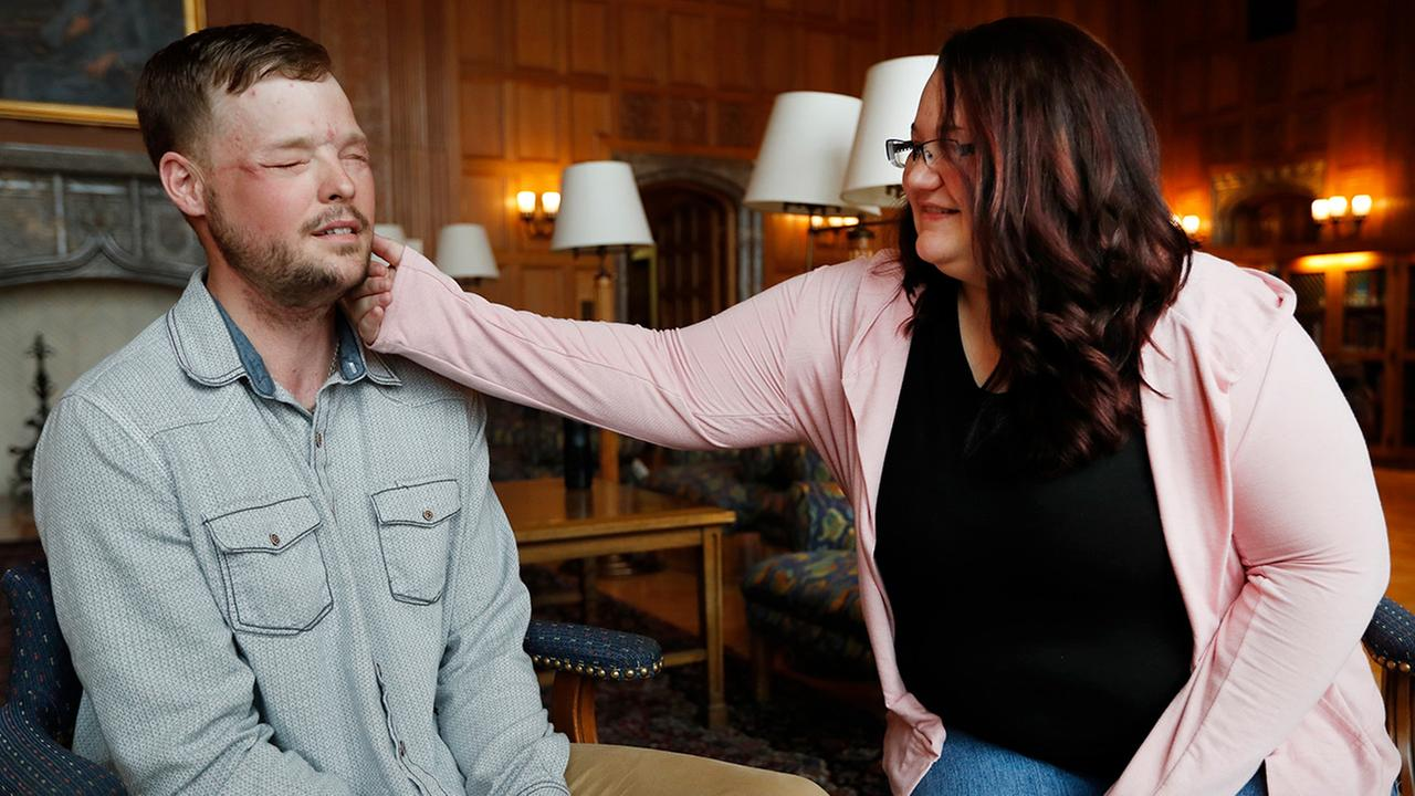 Lilly Ross, right, feels the beard of face transplant recipient Andy Sandness during their meeting at the Mayo Clinic, Friday, Oct. 27, 2017, in Rochester, Minn.