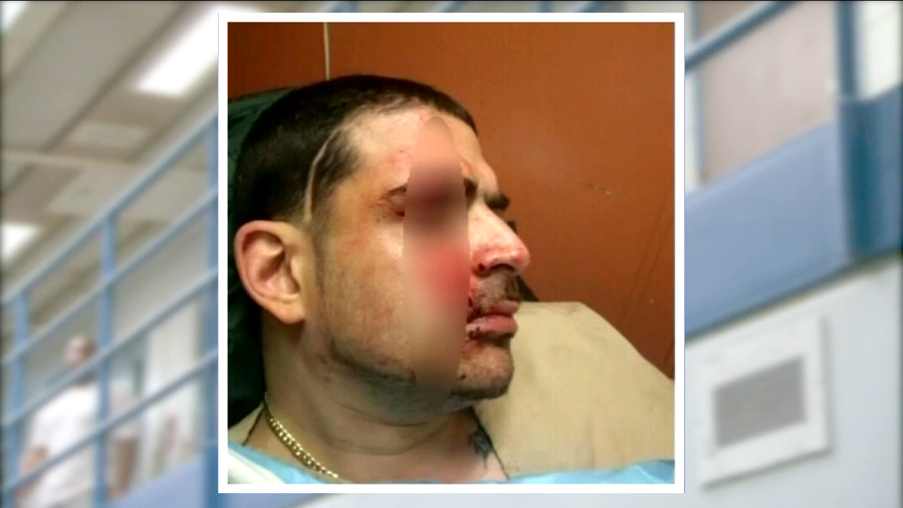 Rikers Island inmate slashed, picture shows up on Facebook ...
