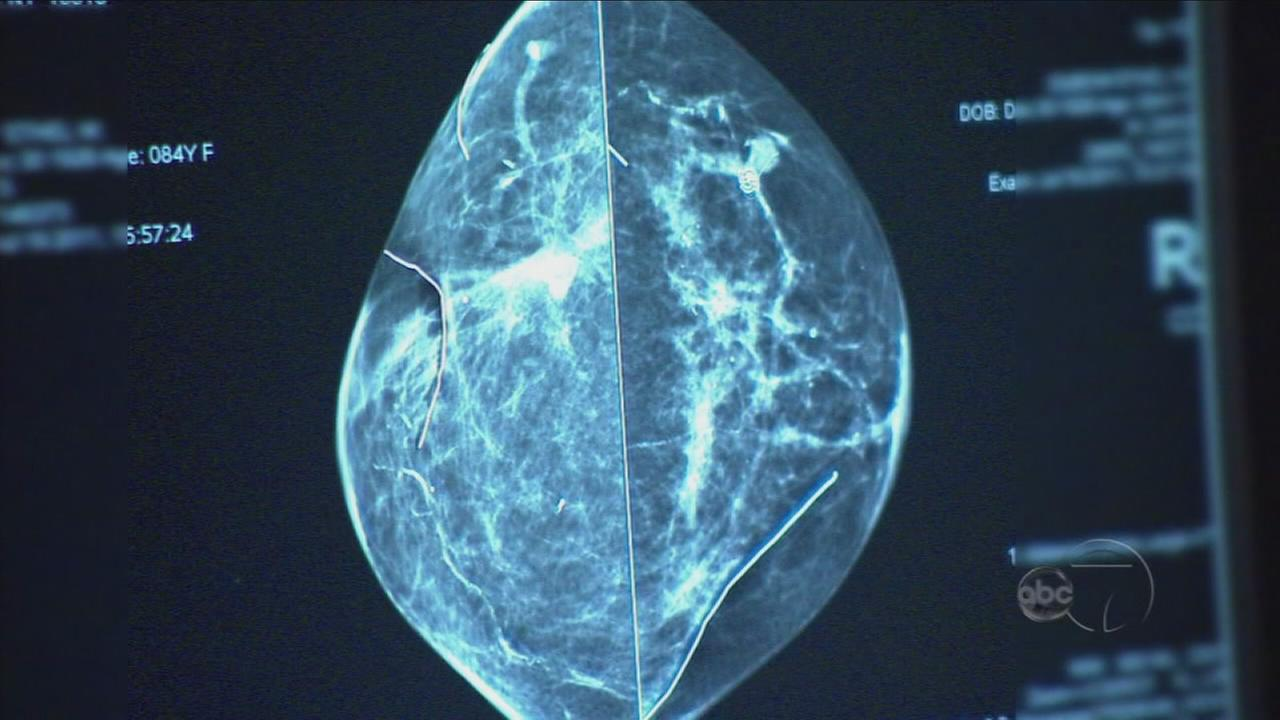 Breast Cancer: Promising Research and Options