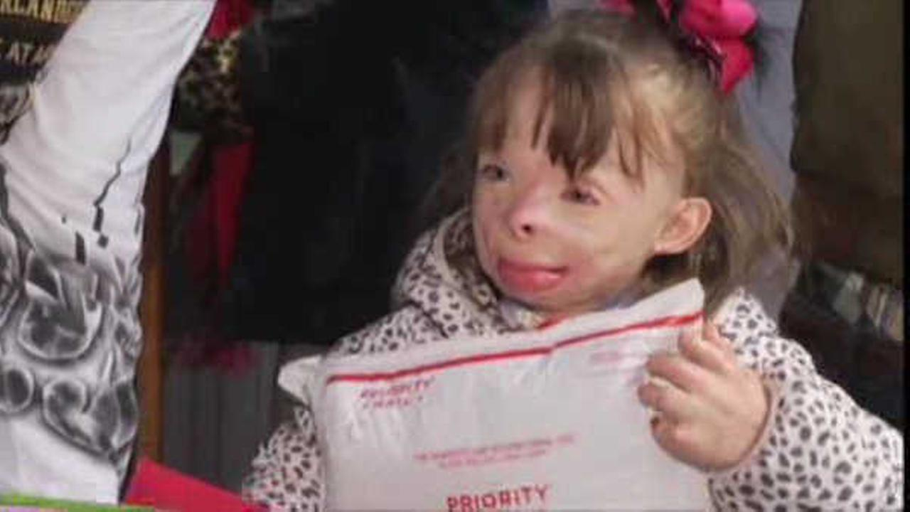 Badly burned little girl who wished for Christmas cards gets more than 2 million