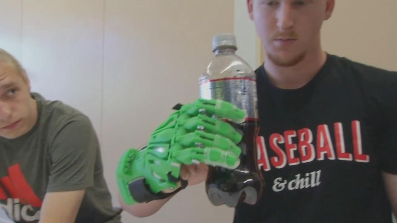LI high schoolers make prosthetic