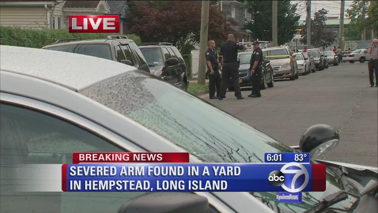 Severed arm found in Hempstead yard
