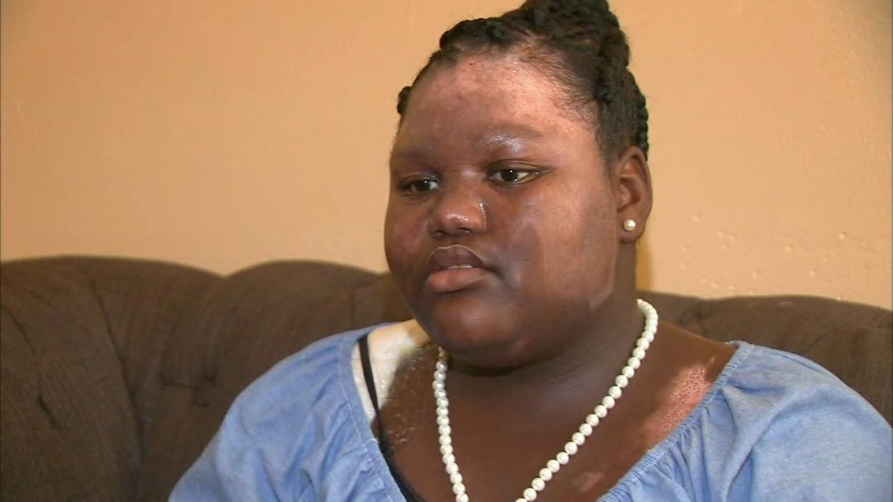 Web extra: Girl talks about being burned by boiling water
