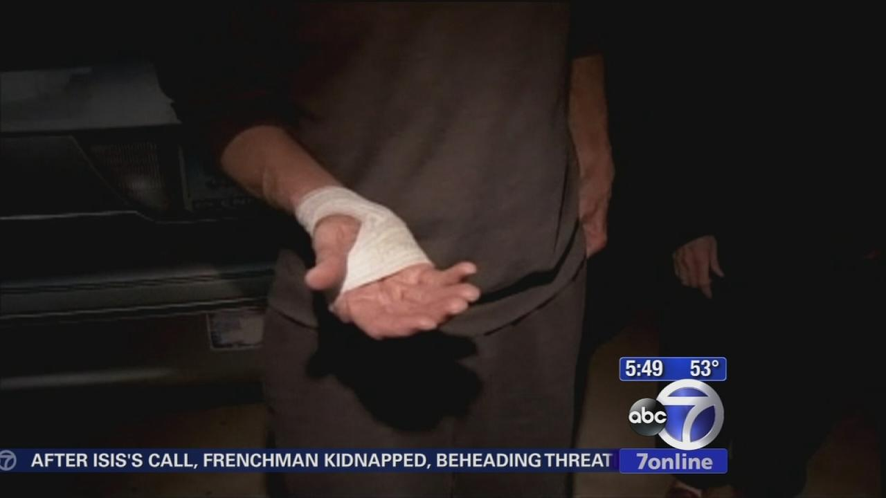 Several people bitten in fox attack in CT