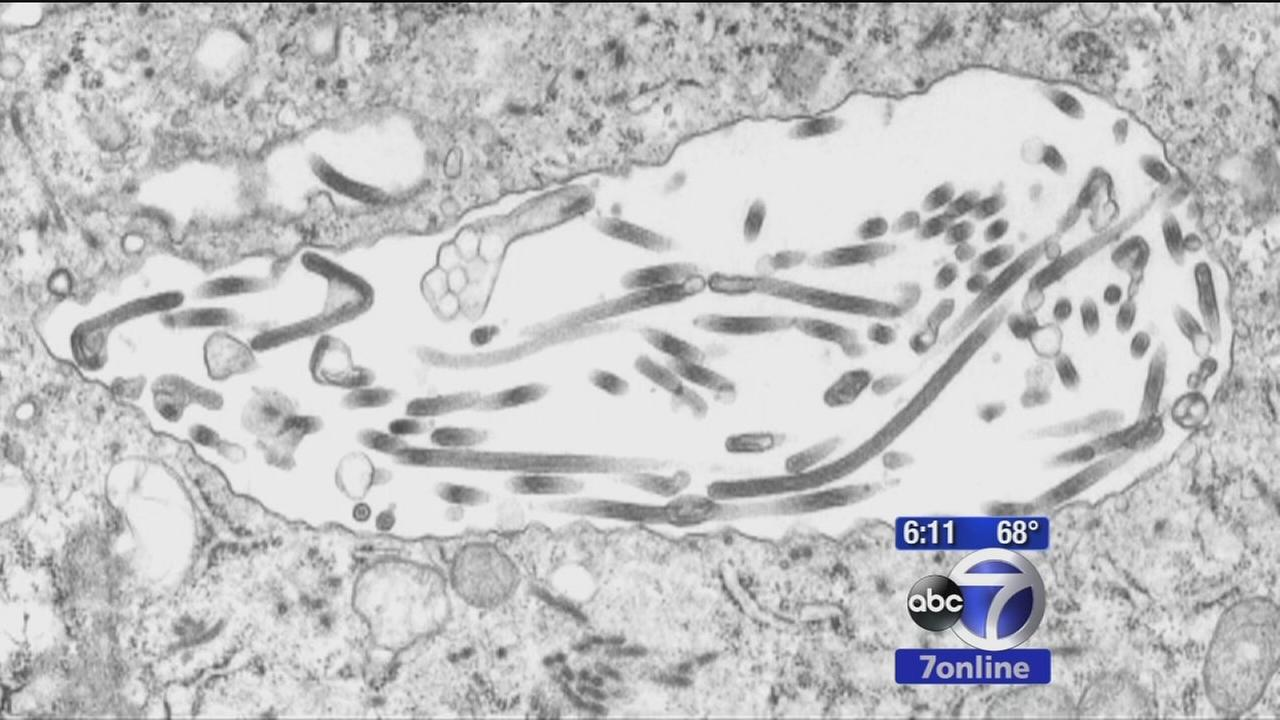 Early symptoms of Ebola similar to the flu