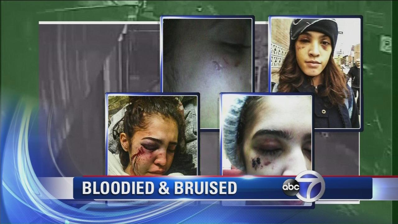 Victim speaks out about brutal attack and robbery