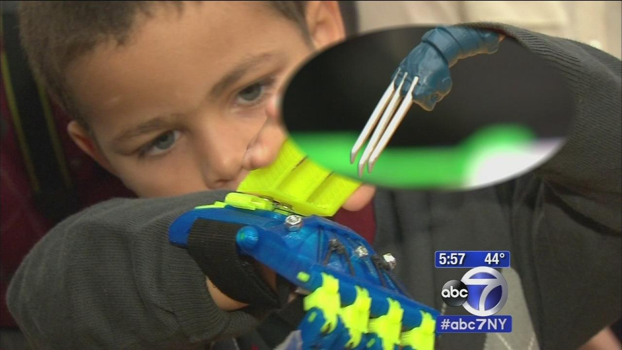 Boy gets prosthetic hand made by Manhattan students