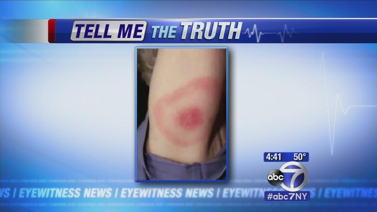 Tell me the truth: What is lyme disease?