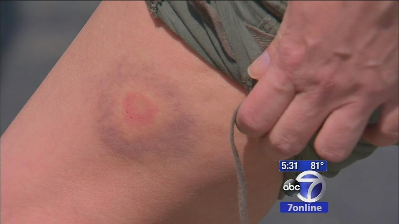 NYPD investigating string of paintball attacks on Staten Island as possible hate crime