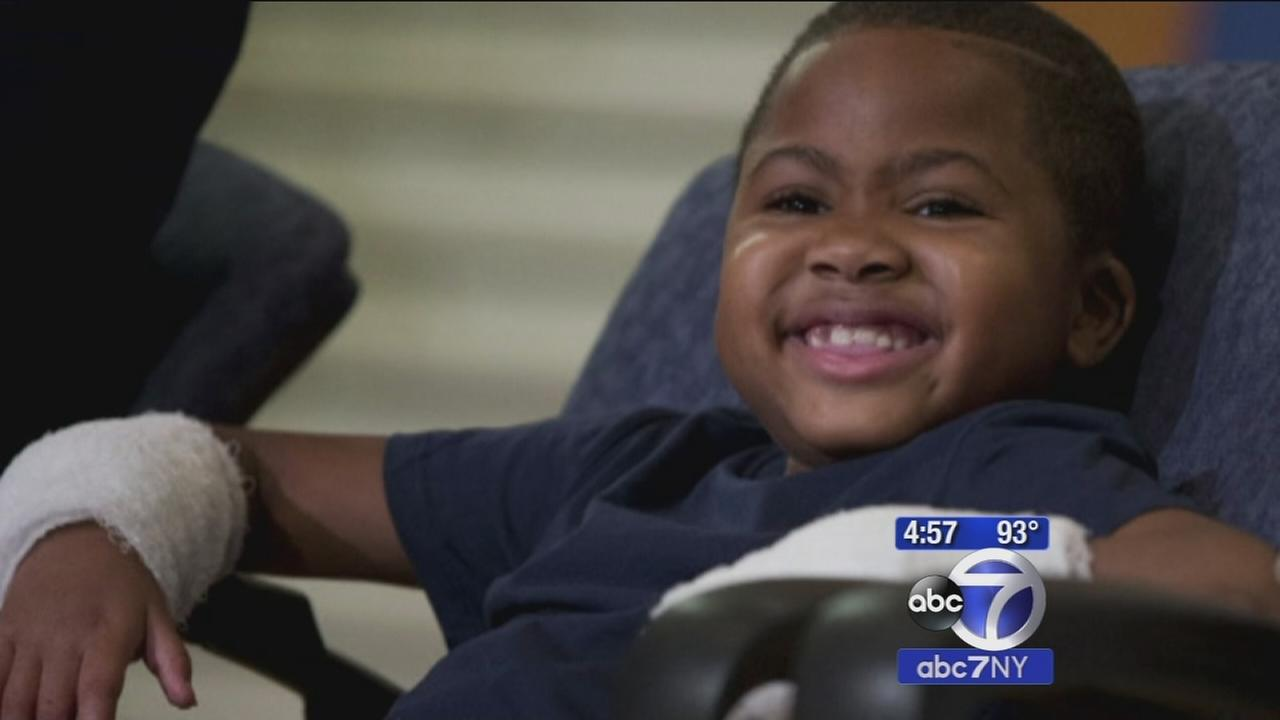First child hand transplant in U.S. announced