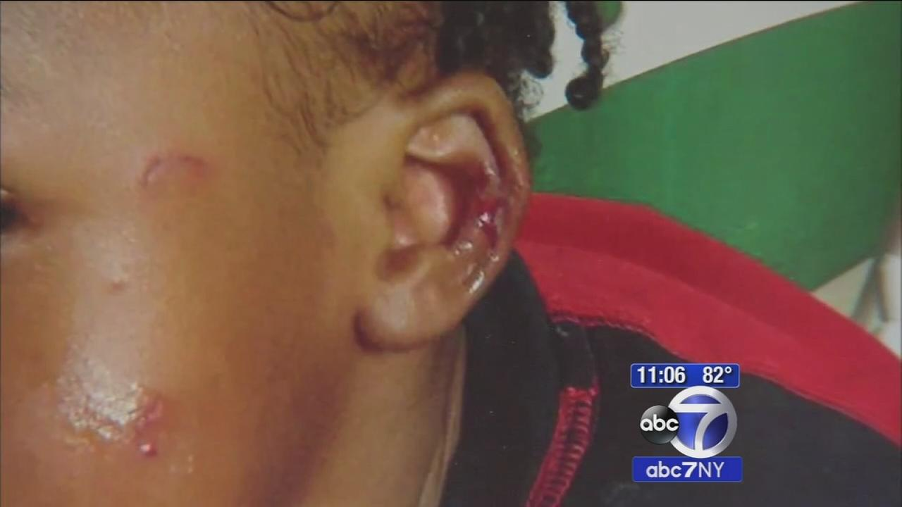 Toddler allegedly beat up by older child at Jersey City daycare