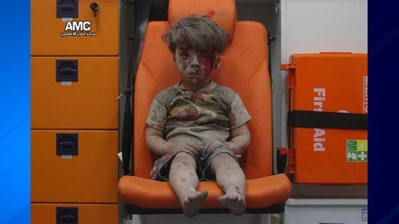 Five-year-old Omran Daqneesh sits dazed and bloodied in the back of an ambulance after an airstrike in Aleppo, Syria.