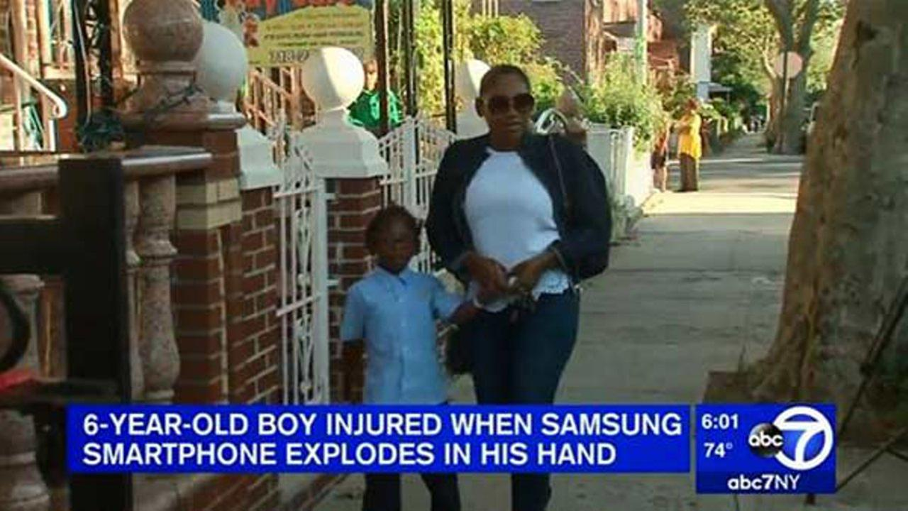 Boy suffers 2nd-degree burns after Samsung Galaxy Note 7 explodes in his hands