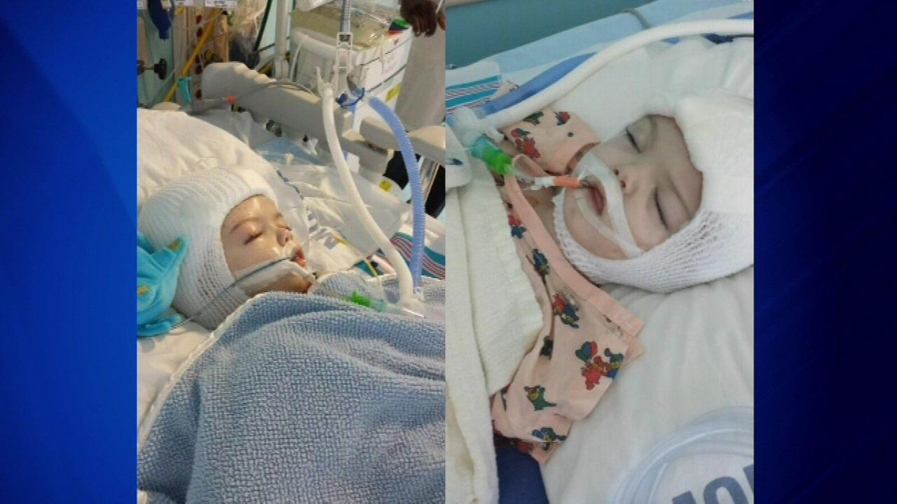 Separated conjoined twins stable after weekend of post-surgery struggles