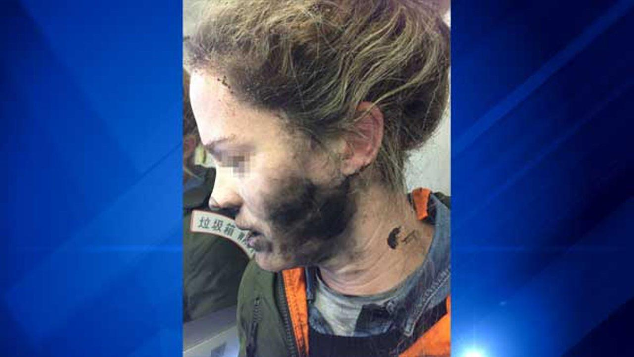 A passengers face was left blackened and her hand blistered after her battery-powered headphones caught fire while she was traveling on an international flight between Beijing and Melbourne.ATSB | CNN