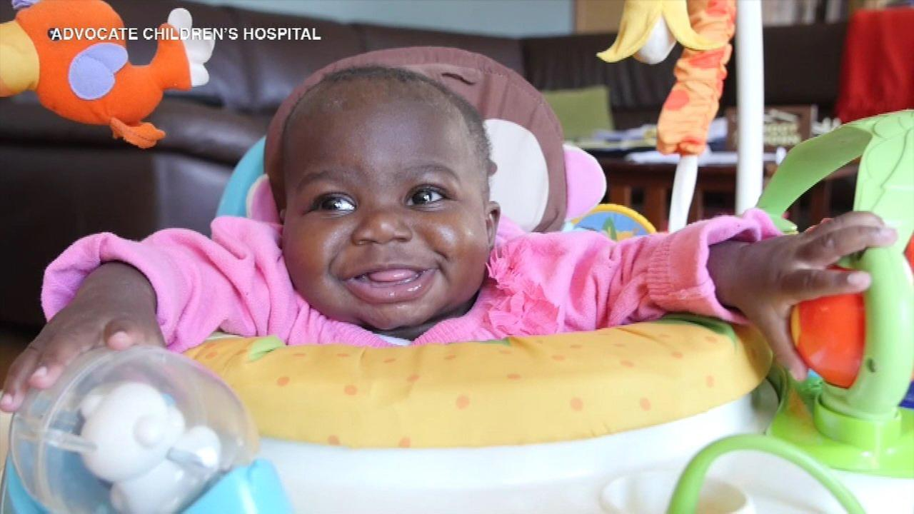 Baby born with 4 legs, 2 spines thrives after risky surgery