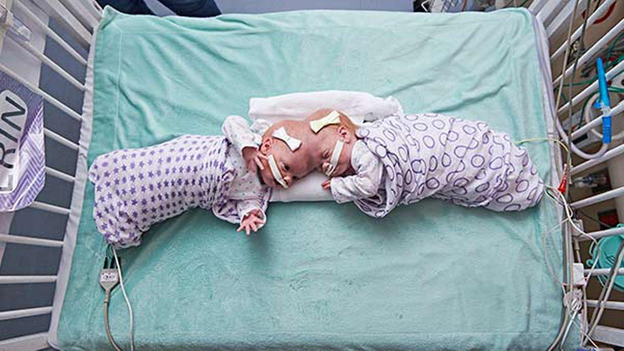 This September 2016 photo provided by the Childrens Hospital of Philadelphia shows conjoined twin girls Abby Delaney, right, and Erin at the Childrens Hospital of Philadelphia.