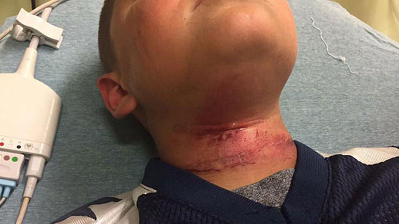 An 8-year-old boy was treated at a hospital for cuts to his neck following the near-hanging, his family said.