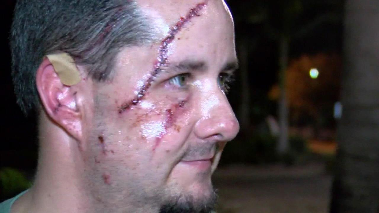 Andrew Meunier was attacked by a bear Tuesday while he was outside with his dog.