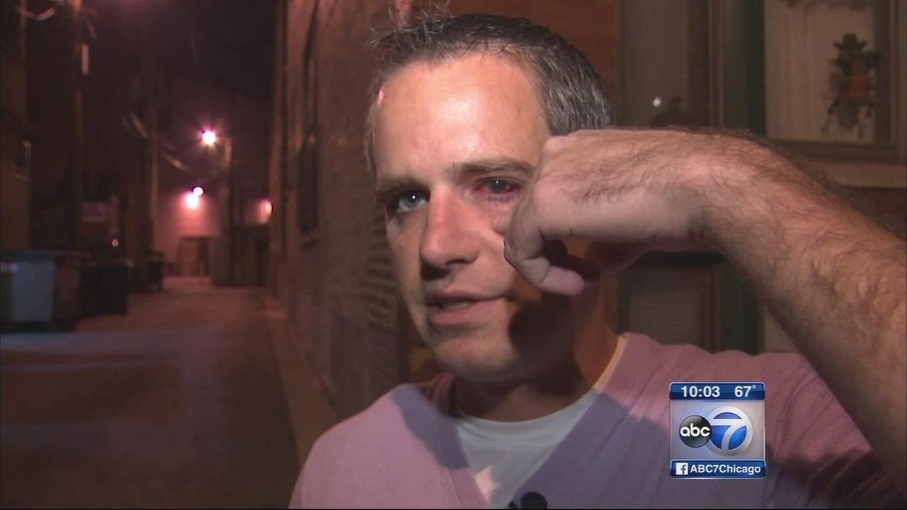 Man shot in eye during Bucktown robbery speaks out